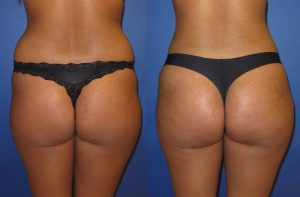 brazilian-butt-lift-before-and-after-101b_1_orig-300x197